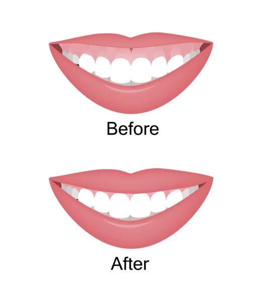 botox uses - reduce gummy smile