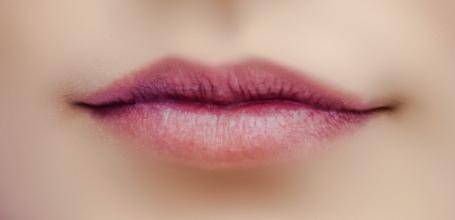 Juvéderm Lips Filler