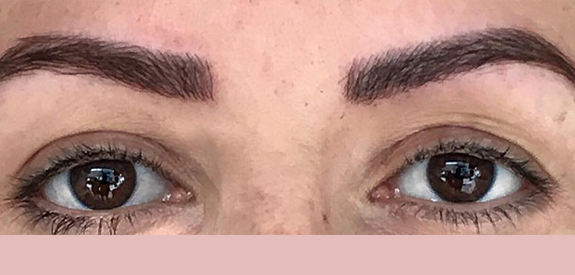 Lazer Lounge - Microblading - After 02