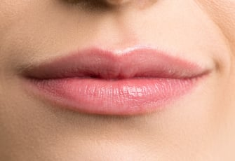 Revanesse Versa+ - Treatment Area - Lips