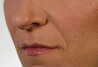 Revanesse Versa+ - Treatment Area - Nasolabial Folds