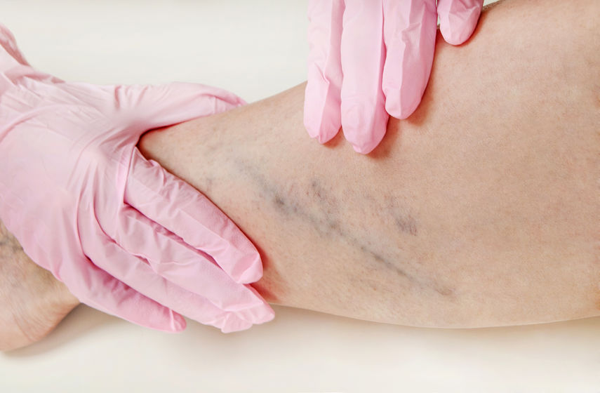 Spider Vein Treatment and Cause