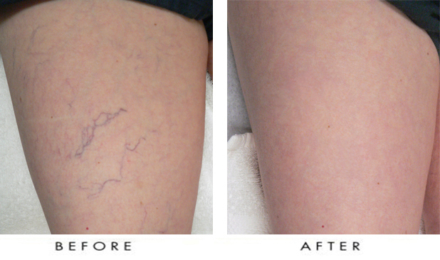 Before & After Pictures of Spider Vein Treatment