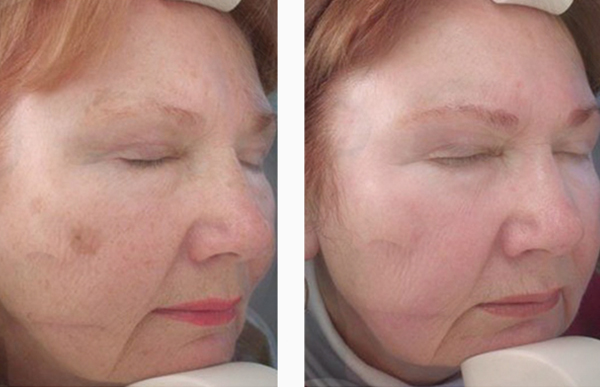 before and after of uneven skin treatment